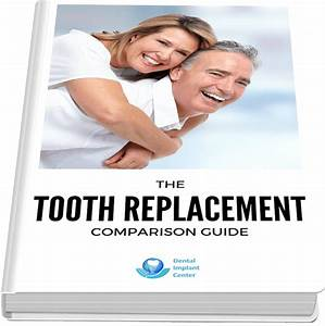 Tooth Replacement Comparison Guide Dental Implant Center