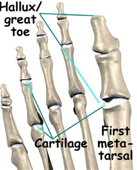 rhb and physical medicine halux limitus rigidus the big toe proper footmechanics