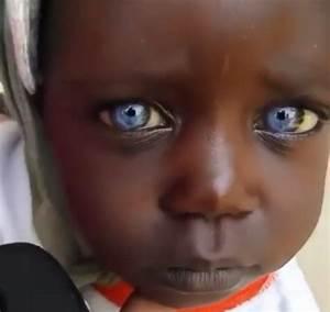 Les Yeux Les Plus Rare : rare cette fillette noire a les yeux bleus ~ Nature-et-papiers.com Idées de Décoration