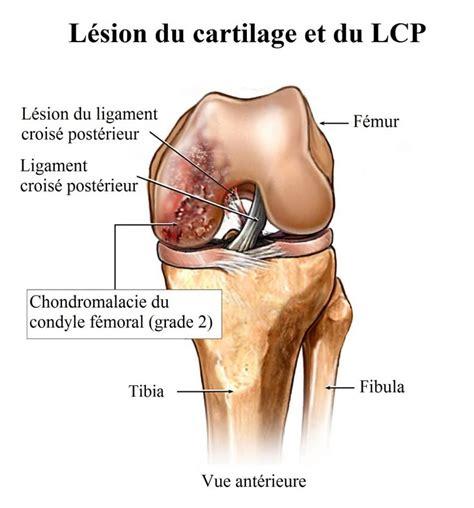 douleur a l interieur du genou sensation de brulure 192 l int 233 rieur du genou maison galerie d id 233 es