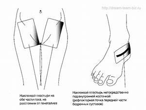 Боли в суставах стрептококк