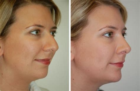 How Much Does A Nose Job Cost List By Country  Health 2. Law Firm Document Management. California Commercial Insurance. Intrauterine Pressure Catheter. Electric Providers In Houston. Bi County Gwinnett Pediatrics. Adopt A Child From Korea Meth Addiction Signs. Walgreens Flagship Store Lap Band Eligibility. Dui Lawyers In Los Angeles Custom Chevy Cruze