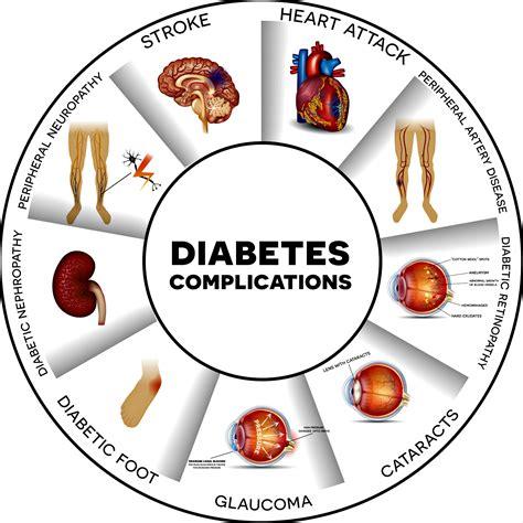 complications  diabetes  symptoms  treatment