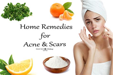 Effective Home Remedies For Acne Scars Heart Bows Makeup