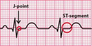 12 Lead Ecg Placement
