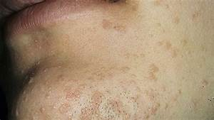 Treatment Of Flat Wart  U2013 How To Get Rid Of Flat Warts On