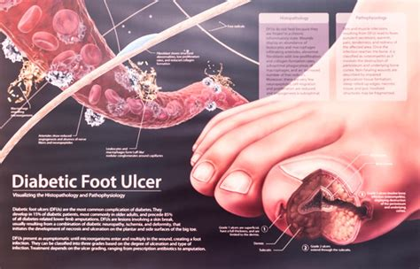 montreal foot diabetic foot treatments consultations