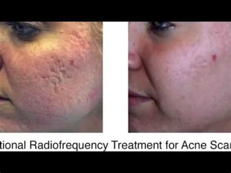 Acne Treatment Acne Scar Scarring Removal Cardiff London ...