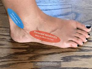 Foot Pain On The  U0026quot Outside U0026quot  Of Your Foot