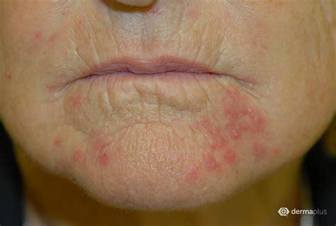 praziquantel salbe bei perioraler dermatitis dermaplus