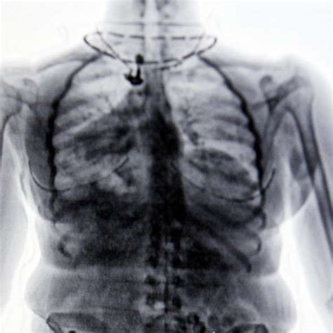bone cancer ray simple being pa missed cases diagnose help express