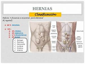 Hernias Abdominales  Hernia Femoral Hernia Inguinal