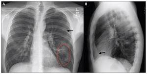 Chronic necrotizing pulmonary aspergillosis in a patient ... Aspergillosis