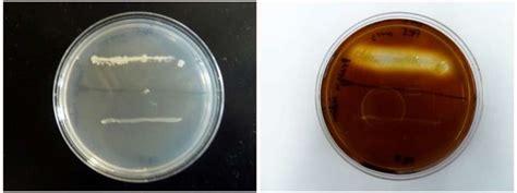 amylase test starch hydrolysis