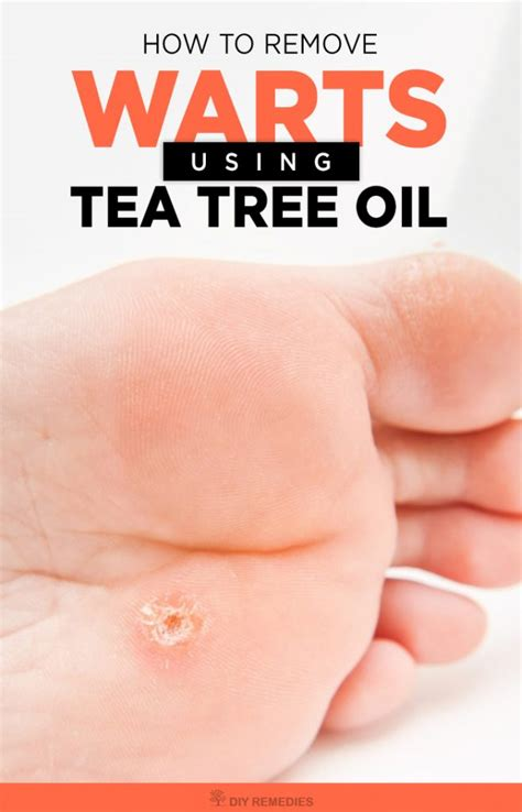 How To Remove Warts Using Tea Tree Oil