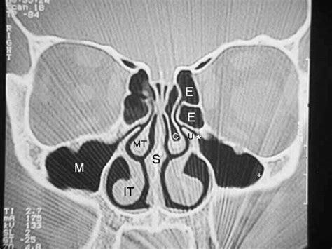 sinus ct scan sinusitis   tichenor