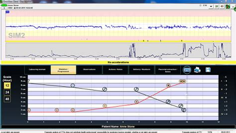 Screenshots Central Fetal Monitoring