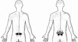 2020 Guide  How To Use A Tens Machine For Sciatica Pain Relief