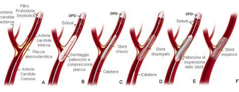 Kinking Carotide Interna Sintomi Stenosi Carotidea