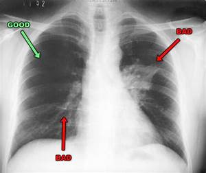 Pneumonia X-ray Pictures
