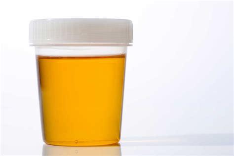 urine infections urine color  urine