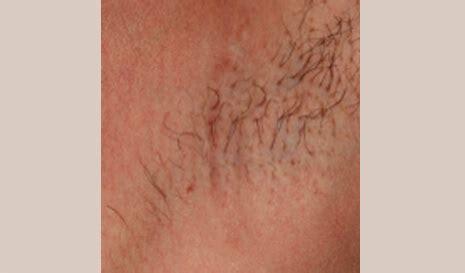 Scar types - Surgical & Burn scars   Aesthetipedia.com
