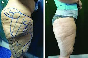 A Case Of Thighs Laser Liposuction  Local Lipodystrophy