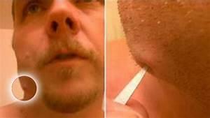 Percer Un Bouton : abces dentaire perc carabiens le forum ~ Dallasstarsshop.com Idées de Décoration