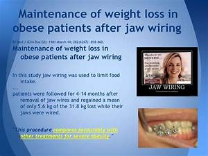 Jaw Wiring For Weight Loss  U2013 Blog Dandk