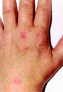 Pictures Of Shingles On Hands - Oasis amor Fashion