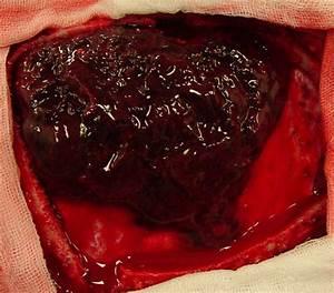 Blood Clot  Causes  Symptoms  Treatment Blood Clot