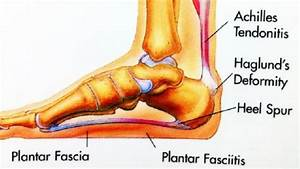 Plantar Fasciitis Causes  Symptoms And Physiotherapy