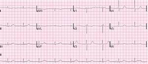 Dr. Smith's ECG Blog: STEMI with Life-Threatening ...