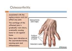 Osteoarthritis Vs Rheumatoid Arthritis Hands osteoarthritis & gouty ... Osteoarthritis