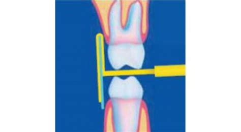 kwik bite  ray holders  horizontal bite wings kerr dental