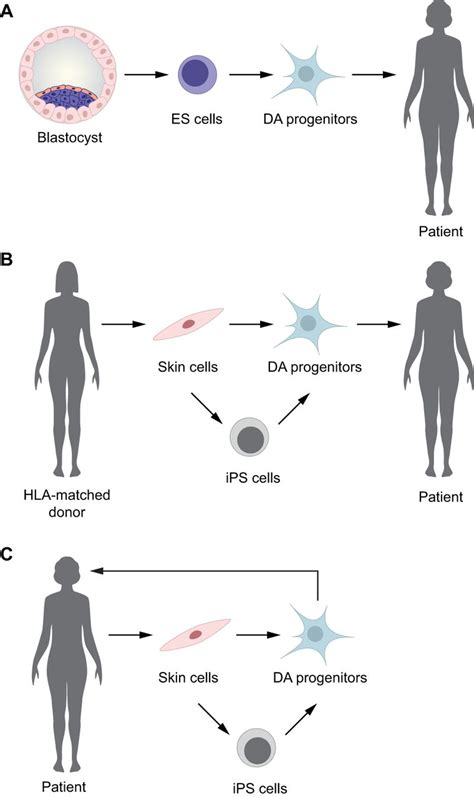 stem cell based therapies  parkinsons disease