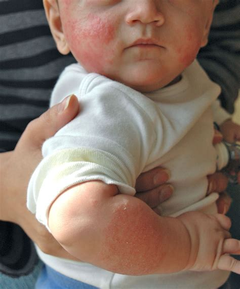 Cows Milk Allergy Manifested As Atopic Dermatitis Eczema