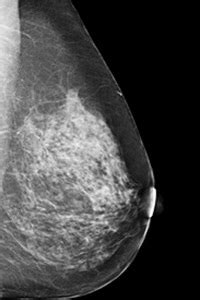 Mammography – Christiana Care Health System