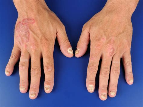 Huidziekten psoriasis