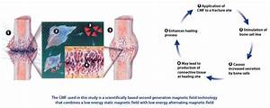 Bone Growth Stimulation Devices