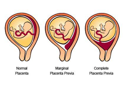 Berhubungan Saat Hamil Placenta Previa Babycenter