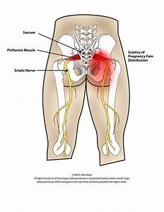 back pain medication during pregnancy