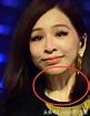 王心凌一個小細節被曝整容過度 35歲的年齡卻像53歲大媽的臉 - 每日頭條