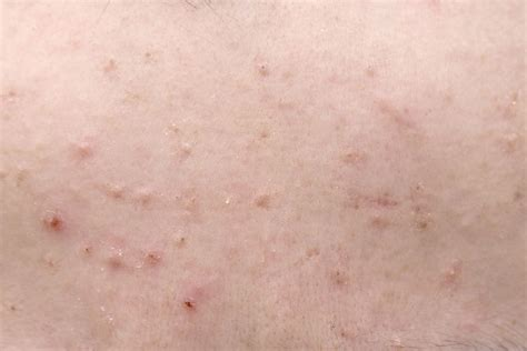Rules To Follow When You Have A Skin Rash