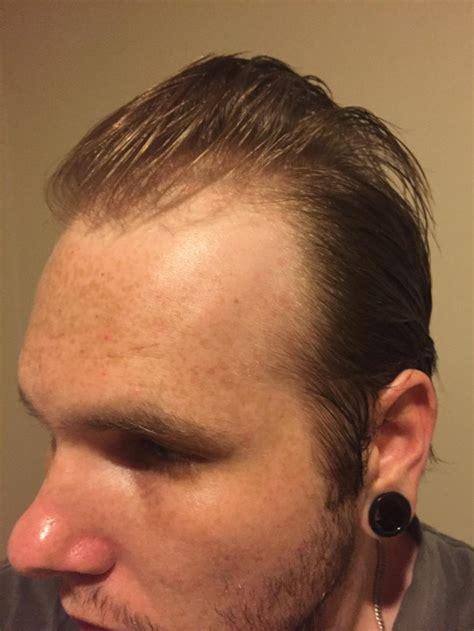 buzz cut thinning hair   hairsjdiorg