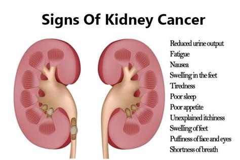 kidney cancer signs doctor asky prevent problems
