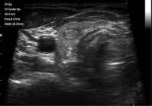 Endocrinology  U2013 Ultravision