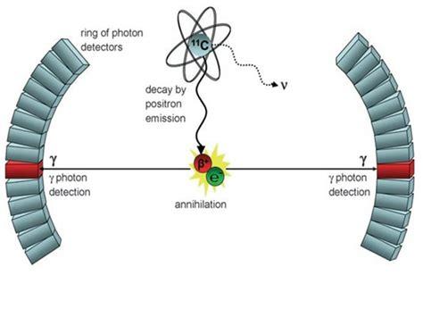 pet camera triumf canadas particle accelerator centre