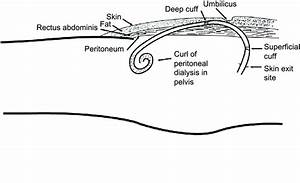 Position Of Peritoneal Dialysis Catheter Within Oblique