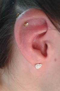 My Cartilage Piercing Is Swollen And Hard - The Best Cart